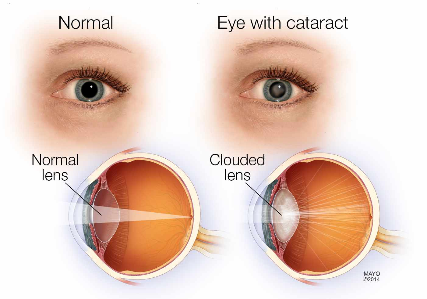 cataracts images #10