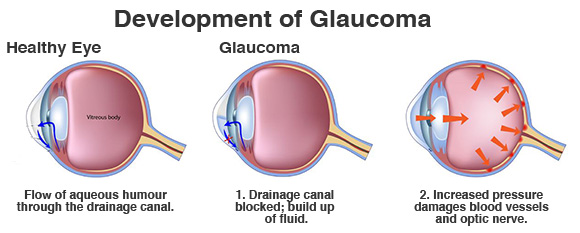 diagnosed with glaucoma? it's not the end of the world, honest!, Skeleton